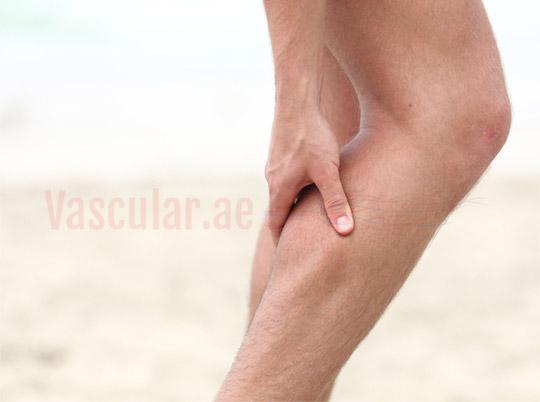 متلازمة تململ الساقين