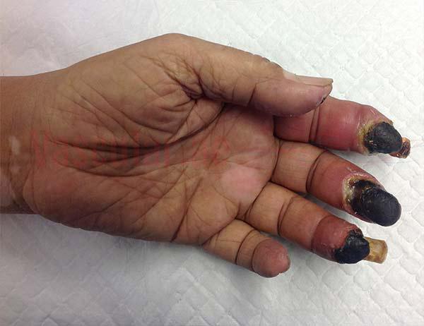 مرض السكري وانسداد الأوعية الدموية في اليد