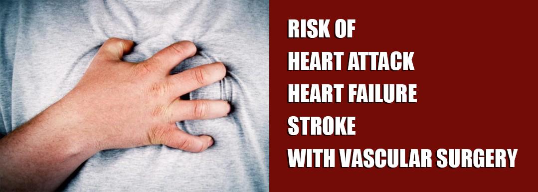 مخاطر النوبات القلبية / فشل القلب / السكتة الدماغية مع جراحة الأوعية الدموية