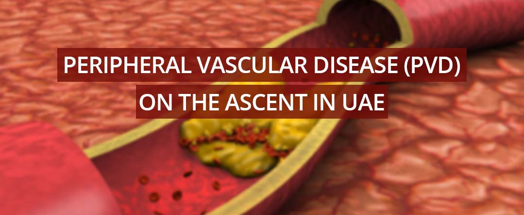 أمراض الأوعية الدموية الطرفية تتزايد في الإمارات العربية المتحدة