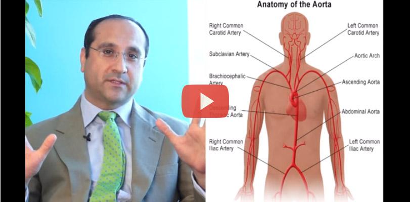 تمدد الأوعية الدموية – الأعراض والعلاج
