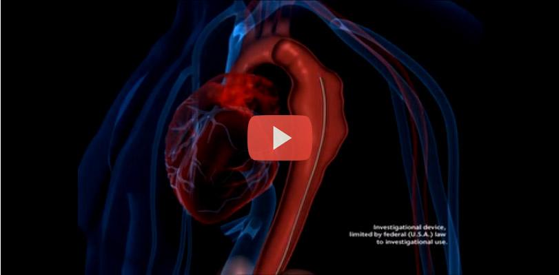 علاج تمدد الأوعية الدموية بالصدر
