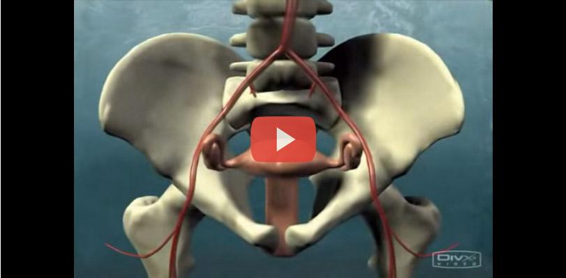 فيديو توضيحي للعلاج بطريقة الانصمام الرحمي الليفي